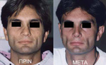 Men's Rhinoplasty