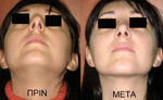 Nasal tip correction