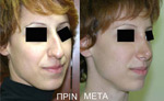 Women's Rhinoplasty