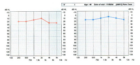 Normal audiogram. The lowest intensity in decibels, which the patient can hear at each frequency, is noted on the diagram. For the adult, values less or equal to 25 dB are considered normal. The red diagram refers to the right and the blue diagram refers to the left ear.