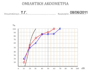Speech Audiogram. The percentage of the words that can correctly repeated by the patient at each frequency are plotted on the diagram. The red curve refers to the right and the blue curve to the left ear.