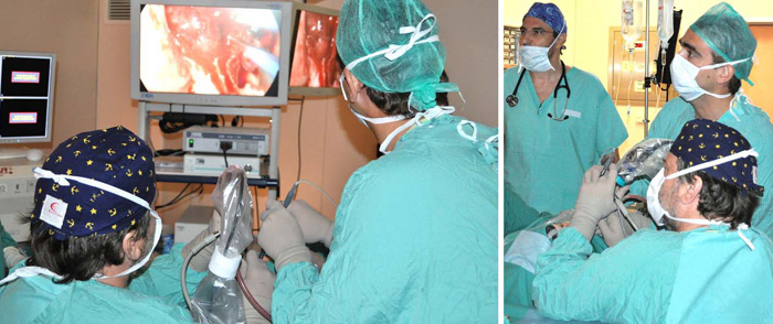 Endoscopic Skull Base Surgery, for removal of a pituitary adenoma. The Rhinologist and the Neurosurgeon work together, looking at the high resolution monitor. A second monitor is placed at an angle, for the anaesthetist and the theatre staff to follow the operation. At the left end of the picture, the monitor of the image guidance system (Navigator) is shown at standby mode.