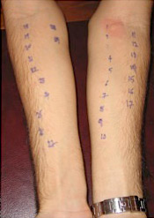 Negative Skin Prick Tests. Local reaction is present only at the position of the positive control (Νο1).