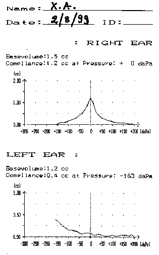 Tympanogram. The curve of the right ear is normal. The abnormal curve of the left ear denotes the presence of fluid behind the eardrum.